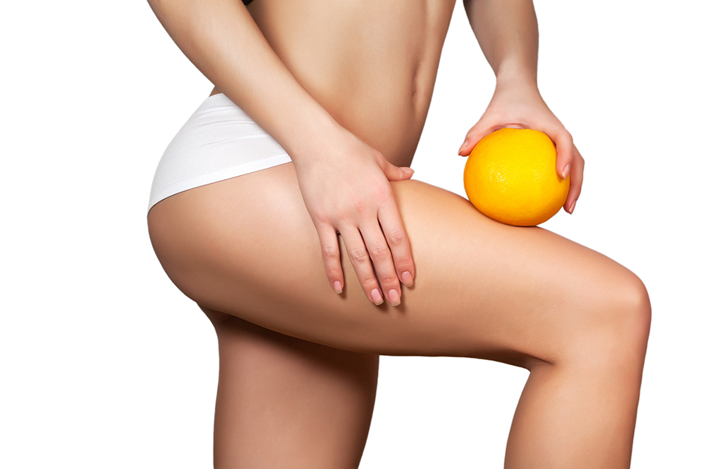 Cellulite: perché si forma e come combatterla