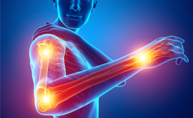 Reumatismi: cause, sintomi e rimedi