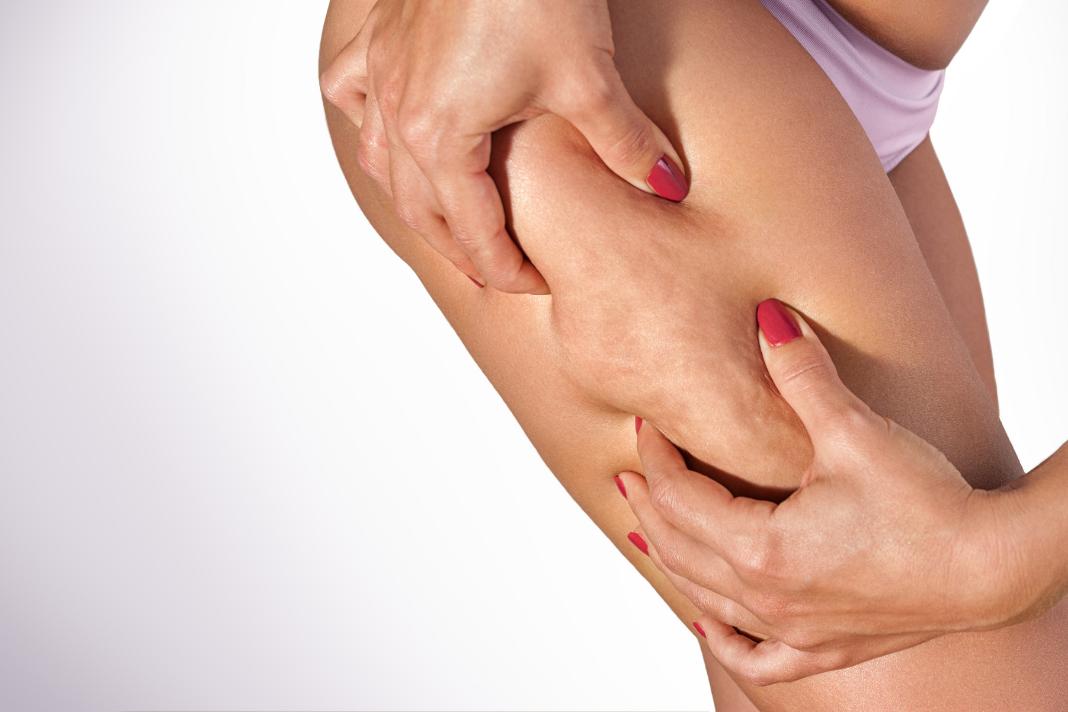 Pressoterapia: un rimedio per combattere la cellulite